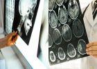 ഒരു പോറല് പോലുമുണ്ടാകില്ല, പക്ഷേ മിനിറ്റുകൾക്കുള്ളില് മരണമെത്തും: തലയ്ക്കേൽക്കുന്ന  ആഘാതങ്ങൾ നമ്മെ ഓർമ്മിപ്പിക്കുന്നത്