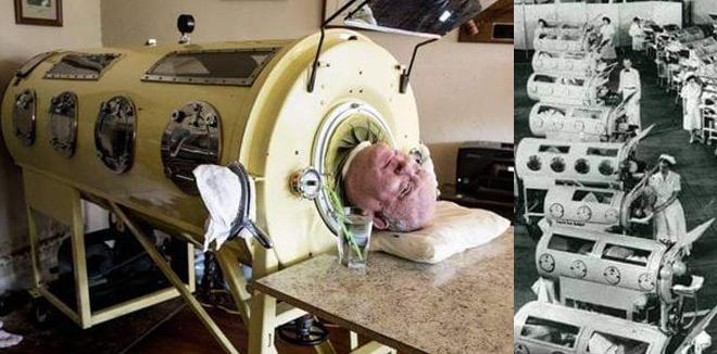 'ഇത് അയൺ ലങ് അഥവാ ഇരുമ്പ് ശ്വാസകോശം; അന്നത് വിപ്ലവകരമായ കണ്ടെത്തലായിരുന്നു': വാക്സീൻ വിരുദ്ധത പടര്ത്തുന്നവര് അറിയാന്, കുറിപ്പ്